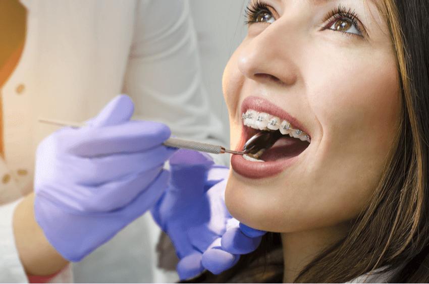 Ghizlane | Blog | Yetişkinler İçin Ortodonti Tedavisi Nasıl Yapılır?